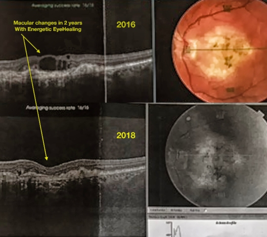 Macular changes in 2 years